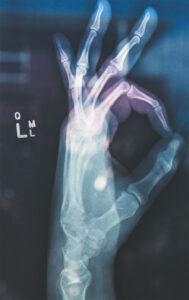 Bone Density versus Bone Scan