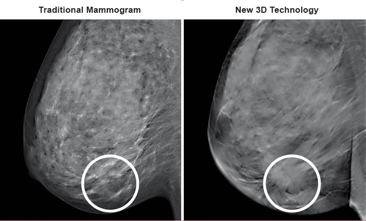 St Louis True Breast Tomosynthesis 3D Mammography